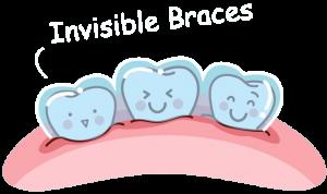 invisalign_clear_braces